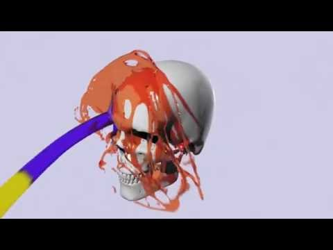 thinkingParticles 6 Subscription Drop 4 - ImplicitShape Surface Control