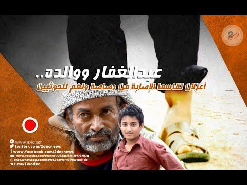 عبدالغفار ووالده.. أعزلان تقاسما الإصابة من رصاصة ولغم للحوثيين