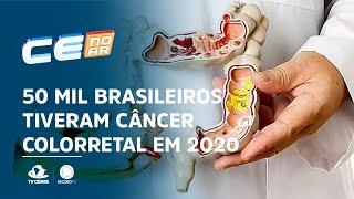 Em 2020, 50 mil brasileiros tiveram câncer colorretal