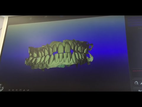 Invisalign Journey Part 2: Getting a 3D Scan of my Teeth!