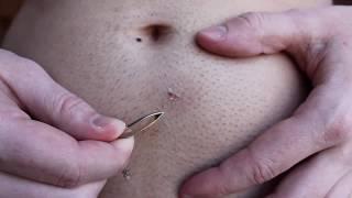 Jezivo! Ovaj čovjek je izvadio užas iz svog stomaka (VIDEO)