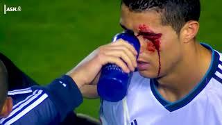 15 lần ronaldo bị chơi xấu phải đổ máu (15 Horror Tackles on Cristiano Ronaldo)