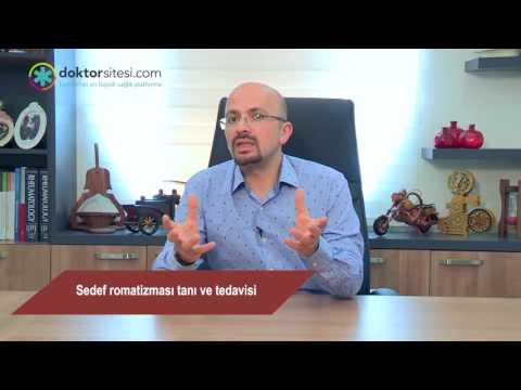 Sedef romatizması tanı ve tedavisi