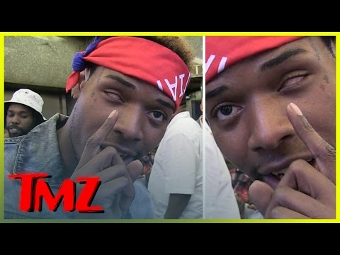 Fetty Wap -- '679' Rapper Explains How He Lost His Left Eye   TMZ