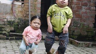 Đau lòng cặp anh em 'người ếch' do mắc bệnh lạ ở Mê Linh
