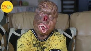 Surviving Severe Burns (Doctors Say He's a Miracle)