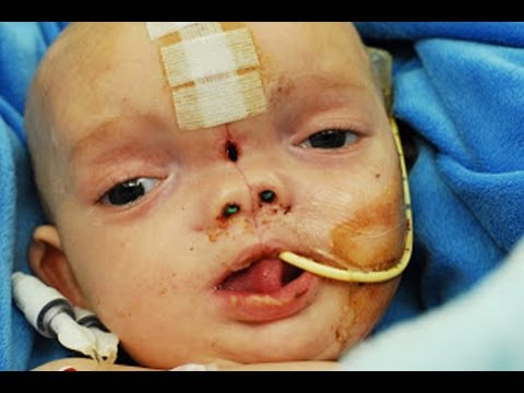 Baby Born With Brain Outside Of Head - YouTube