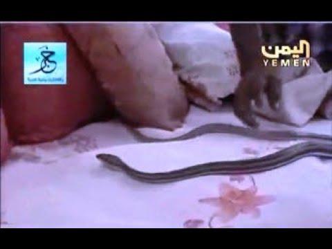 الحديدة ... اسرة يمنية تعيش مع الثعابين