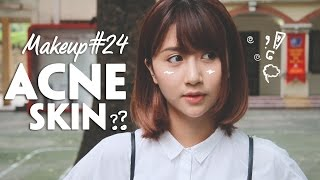 Quynh Anh Shyn - Makeup#24: ACNE SKIN ??