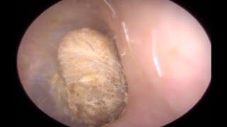 2 godine je trpio bolove u uhu: Slabo je čuo, a onda su mu iz njega izvukli OVO! (UZNEMIRUJUĆI VIDEO)