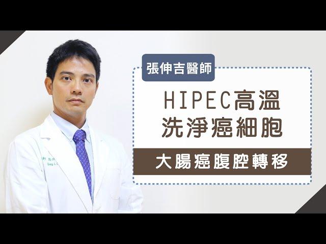 大腸癌腹膜轉移 微創3D手術加腹腔溫熱化療 抗癌更順利