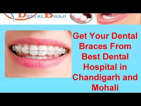 Dentalbhaji Dentist in Chandigarh