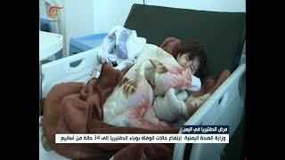 وزارة الصحة اليمنية: إرتفاع حالات الوفاة بوباء     -