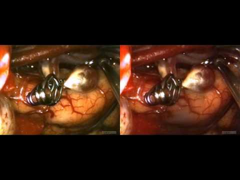 visionsense 3D endoscopic AVM SBS
