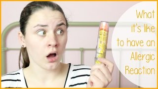 WHAT IT IS LIKE TO HAVE AN ALLERGIC REACTION & STORYTIME | Allie Young