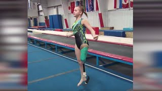 One-Legged Gymnast Overcomes the Odds