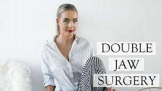 Corrective Double Jaw Surgery Experience | Post OP Swelling & Recovery