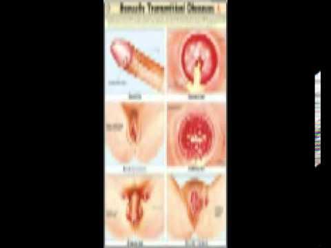 signs sexual disease