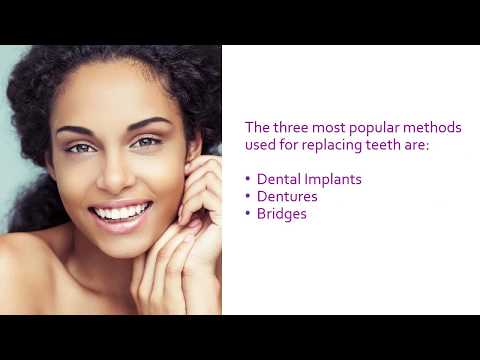 Options for Replacing Lost Teeth
