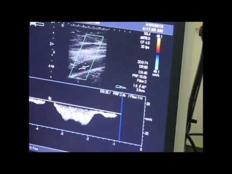 Femoral Vein Flow Using Duplex Ultrasound & Hands-Free Augmentation Device
