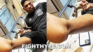 """GAMBOA SETS RECORD STRAIGHT ON FIGHTING GERVONTA DAVIS WITH """"SNAPPED"""" TENDON: """"I REFUSED TO QUIT"""""""