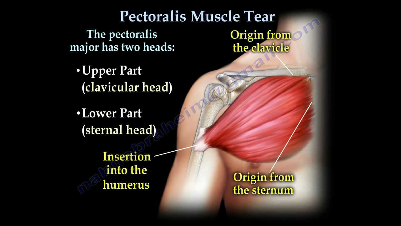 Pectoralis Muscle Tendon Tear Everything You Need To