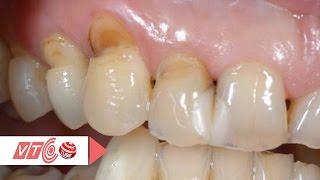 Phương pháp điều trị mòn cổ chân răng hiệu quả | VTC