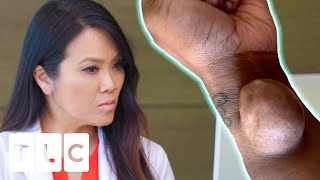 Dr. Lee Meets A Woman With A Very Mysterious Arm Growth | Dr. Pimple Popper: Before The Pop