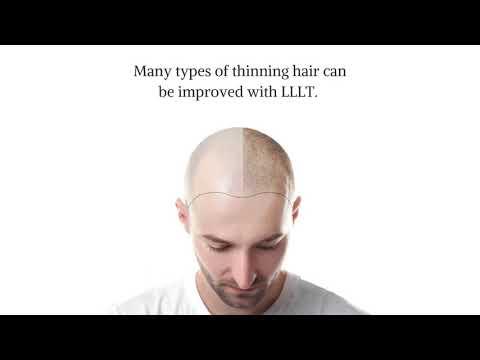 LLLT Treatment For Hair Loss At Kiierr International