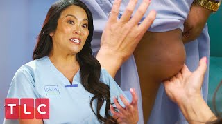 Bride Has a 10-Year-Old Lipoma On Her Leg | Dr. Pimple Popper