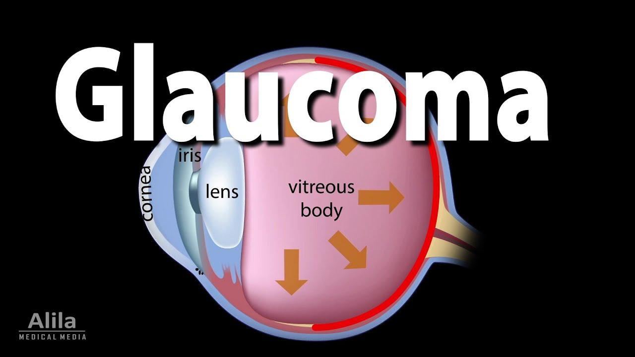 Development of Glaucoma Animation, Open Angle vs Angle Closure Glaucoma.