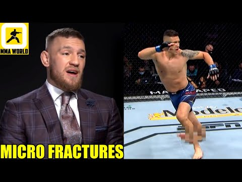 Conor McGregor reacts to Chris Weidman snapping his leg in half after throwing a calf kick,UFC 261