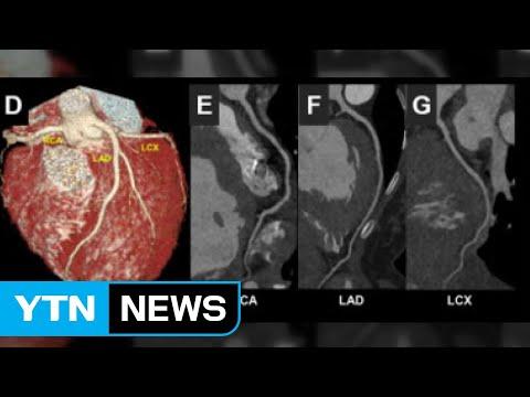 코로나19로 심근염 국내 첫 사례 보고 / YTN