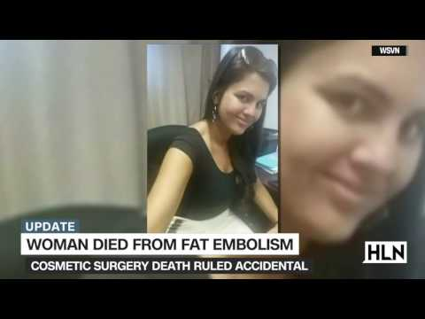 Young mom died from 'fat embolism' during plastic surgery