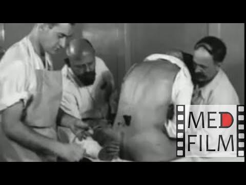 Spinal anesthesia, Dr. Lorenz Bohler, Vienna, 1933 © photo