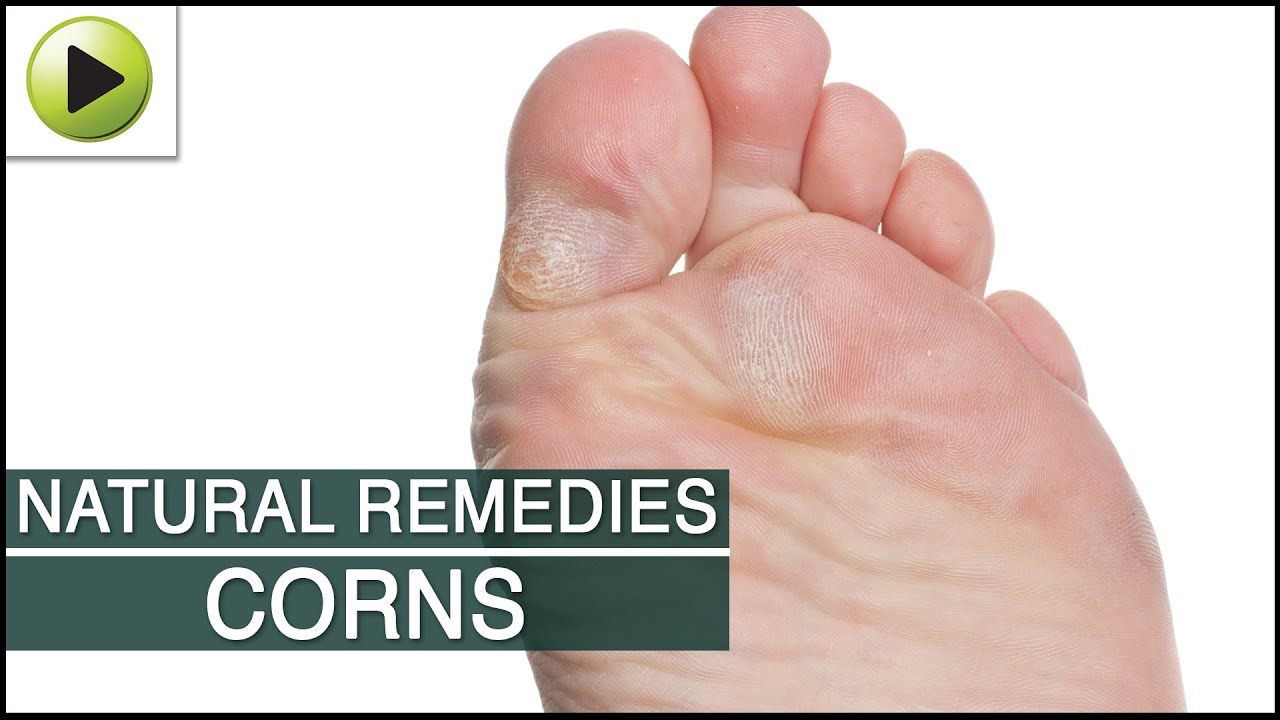 Remedy Memory Foam Shoe Insoles Corn Callus Removal Home Remedies