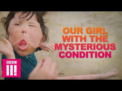 Our Girl With The Rare Condition That Doctors Have Never Seen | Living Differently