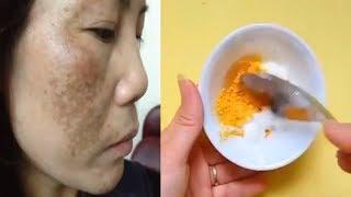 Mỗi ngày bỏ ra 2 nghìn - Kể cả nám và tàn nhang lâu năm cũng hết sạch, đã thế da còn trắng mịn màng