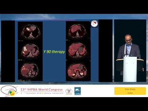 SYM05.3 New Frontiers and Treatment of Colorectal Liver Metastases