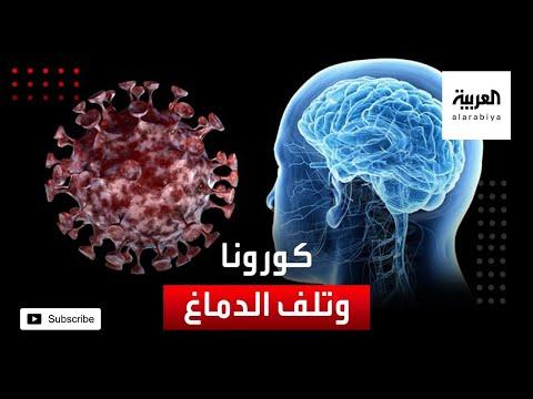 كورونا يهاجم الدماغ