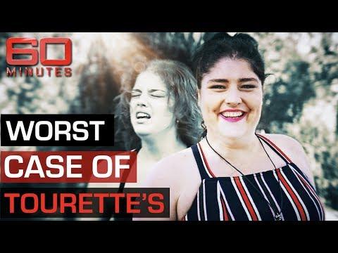 World's most severe Tourette's case doesn't want a cure | 60 Minutes Australia