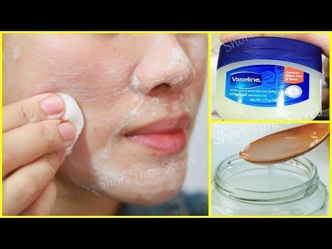 3 Days Overnight Pimples Treatment | World's best Pimple Treatment Method