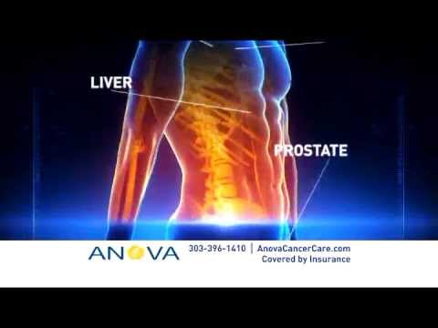 Revolutionary Cancer Treatment with CyberKnife: Anova Commercial