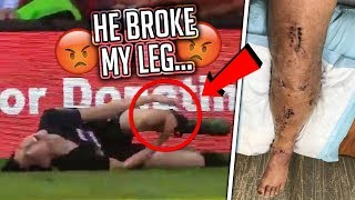 He Broke My Leg At KSI's Soccer Event (serious injury)