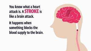 Stroke? Use F.A.S.T.