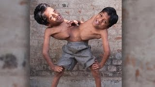 Conjoined Twins: Brothers Joined At The Hip Learn To Live In Harmony