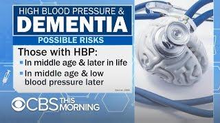 Bajar la presión arterial puede reducir el riesgo de demencia, según un estudio