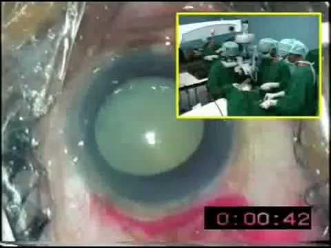 Three Minute Aravind Cataract Surgery (SICS)