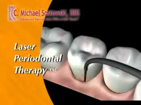 Periodontal Laser Therapy in Binghamton NY