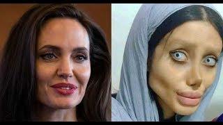 Se operó 50 veces para parecerse a Angelina Jolie Y TERMINA ASÍ